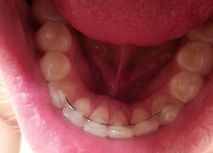 how to tell if my gums are receding
